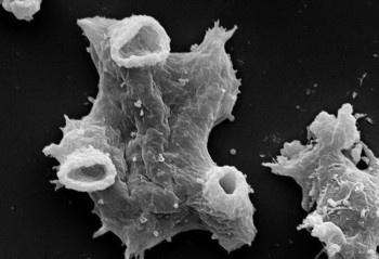 В США Луизиану снова атакует смертельная амёба, поедающая человеческий мозг